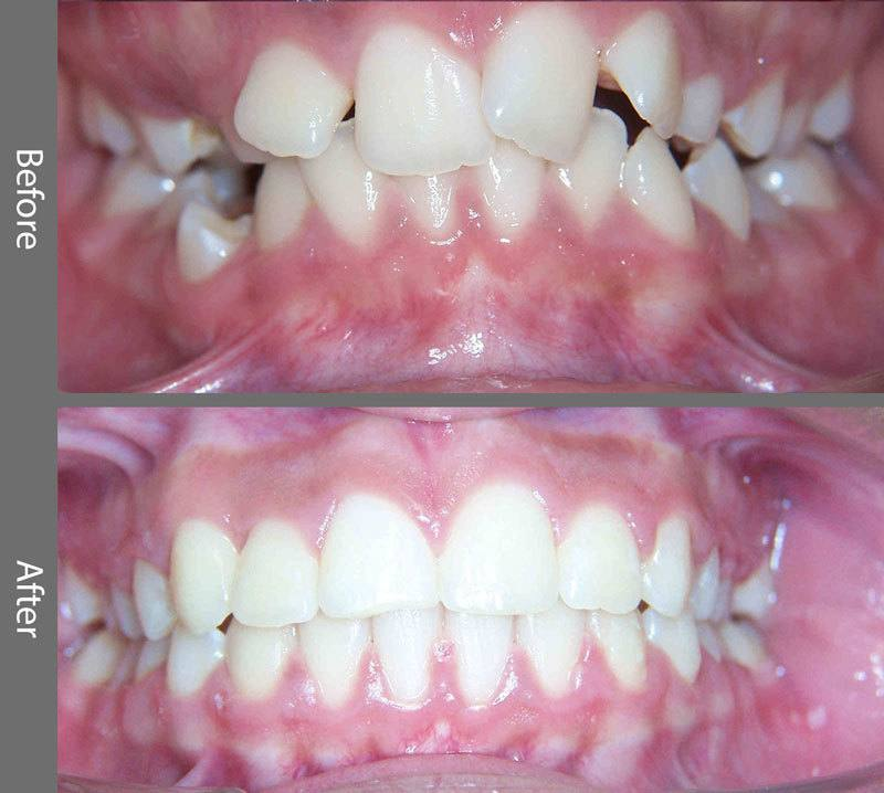 Orthodontics Before and After Photo