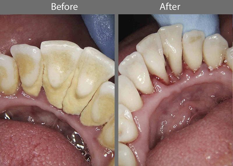 Hygiene Before and After Photo